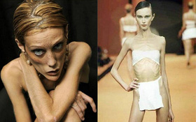 Nhiều người mẫu trên thế giới cũng từng gây sốc vì quá gầy rồi, đâu chỉ riêng gì Cao Ngân!