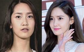 """Hành trình nhan sắc của """"nữ thần"""" Yoona: Vướng nghi vấn """"dao kéo"""" và thỉnh thoảng khiến fan vỡ mộng"""