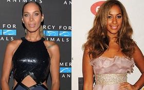 """Hậu giảm cân và sửa mũi, giọng ca """"Bleeding Love"""" Leona Lewis xuống sắc khó nhận ra"""