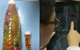 Nhầm hạt nhựa nở là kẹo, đôi vợ chồng Trung Quốc cho con gái 3 tuổi ăn hết gần... 300 viên