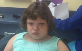Cô bé 11 tuổi mắc căn bệnh kỳ lạ khiến cơ thể luôn rơi vào trạng thái buồn ngủ, choáng váng