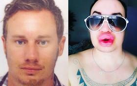 Nghiện phẫu thuật thẩm mỹ, anh chàng bơm môi căng phồng tới hơn 20 lần để nhìn giống... Marilyn Monroe