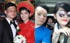 """Cuộc sống hạnh phúc ở Canada của cặp đôi """"chồng xấu- vợ xinh"""" sau 4 năm từng gây xôn xao"""