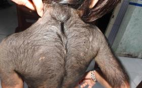 TP. HCM: Bé gái bỗng dưng mọc lông đầy người sau khi uống thuốc tăng cân