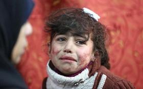 """Thảm cảnh của những đứa trẻ tại """"thánh địa"""" chết chóc Syria: Nỗi đau của các em vẫn chưa có hồi kết"""