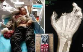 Điện thoại phát nổ trong lúc đang sạc, cậu bé suýt mất mạng, hỏng một mắt và mất một ngón tay