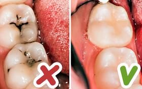 8 mẹo vặt hữu ích giúp bạn luôn nói không với bệnh sâu răng