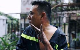 Bàn tay trôi tuột da của anh lính cứu hỏa trong vụ cháy chung cư ở Sài Gòn khiến nhiều người xót xa