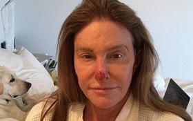 Người bố chuyển giới nhà Kardashian đã mắc bệnh ung thư da chỉ vì không dùng kem chống nắng