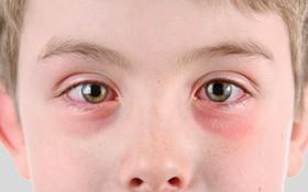Đoán bệnh qua 2 điểm trên khuôn mặt để biết rõ tình trạng sức khoẻ hiện tại