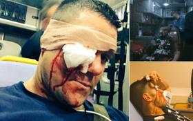 Kinh hoàng đô vật WWE vỡ hốc mắt vì hứng trọn cây gậy bóng chày của đối thủ