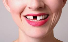 Bị mất răng cửa nên trồng răng loại nào?