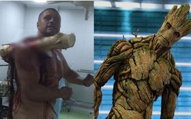"""Tấm gương gan dạ: Bị cây lớn đâm xuyên người vẫn bình tĩnh tạo dáng chụp ảnh, còn đùa """"I am Groot"""""""