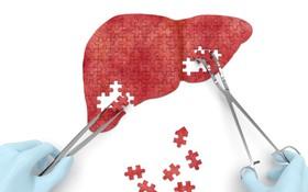 Cảnh giác sớm với 8 hành vi có thể khiến tế bào ung thư gan phát triển nhanh chóng