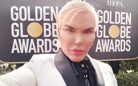"""Búp bê Ken diện đồ trắng nổi bần bật, """"lạc quẻ"""" giữa dàn sao diện đồ đen chống nạn xâm hại tình dục"""