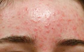 Mụn xuất hiện ở nhiều vị trí trên khuôn mặt có thể là dấu hiệu cảnh báo hàng loạt vấn đề sức khỏe nguy hại