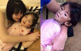 Hình ảnh mới nhất cho thấy em bé Lào Cai bụ bẫm, được mẹ nuôi cưng nựng hết mực khiến nhiều người xúc động