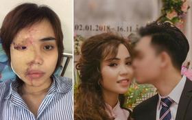 Cựu thiếu úy Công an tạt axit khiến vợ sắp cưới bị biến dạng hoàn toàn gương mặt đã bị bắt giam