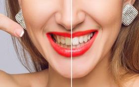 Mẹo nhỏ giúp bạn giải quyết nỗi lo răng ố vàng, nhanh chóng lấy lại nụ cười trắng sáng tự tin