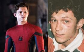 Tom Holland (Spider-Man) lộ ảnh bị đánh tơi tả và bầm dập, Marvel đang làm gì vậy?