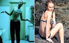 Sốc với loạt ảnh gầy trơ xương đến đáng sợ của sao Hollywood