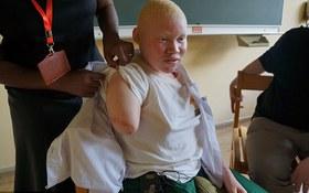 Cô gái bạch tạng kể lại giây phút kinh hoàng khi bị những kẻ săn người chặt tay