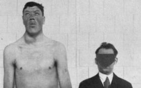 Kỳ lạ người đàn ông sinh ra là người lùn nhưng cuối đời là người khổng lồ