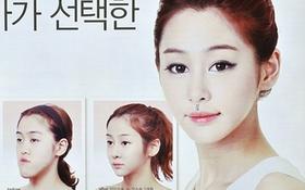 Nỗi ám ảnh phẫu thuật thẩm mỹ của dân Hàn