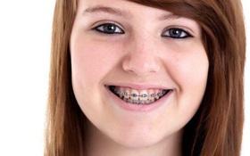 Anh: Teen girl tử vong sau khi sử dụng tampon lần đầu tiên