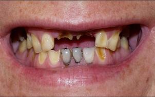 Lỡ quên đánh răng một hôm, tăng nguy cơ ung thư dạ dày và hàng loạt bệnh tật