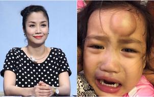 Ốc Thanh Vân hoảng hốt vì con gái ngã, đầu sưng to như quả chanh