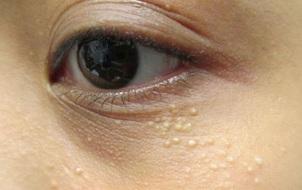 Điểm mặt những thói quen gây mụn thịt chi chít quanh mắt và mặt