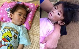 """Sau 1 tháng, bé gái 14 tháng từng chỉ nặng 3,5kg đã được """"hồi sinh"""" thế này..."""