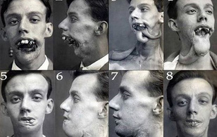 5 căn bệnh kì quái từng xuất hiện trong lịch sử nhân loại