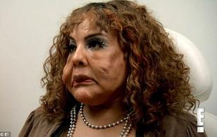 Sự đau đớn của người phụ nữ chuyển giới được phẫu thuật bơm xi măng và keo cầu vào mặt