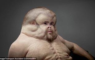 Người đàn ông với hình dạng đặc biệt có thể sống sót qua mọi tai nạn giao thông
