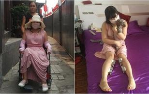 """Hậu quả kinh hoàng của cô gái """"cuồng dao kéo nhất Trung Quốc"""" với 200 lần phẫu thuật thẩm mỹ"""