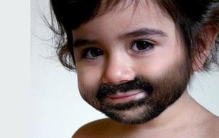 """Chứng bệnh lạ khiến bé trai 1 tuổi có """"cái ấy"""" to như... 25"""