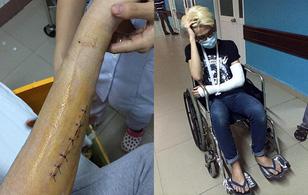 Đào Bá Lộc phẫu thuật sắp xếp xương cánh tay vì tai nạn