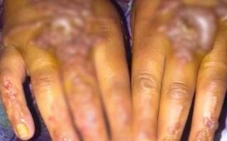 Cô gái bị phồng rộp tay nặng nề do dị ứng mực xăm henna