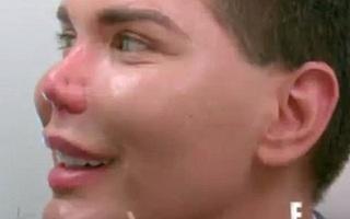 Búp bê Ken Brazil tiếp tục đập mũi đi xây lại lần thứ 10 mặc nguy cơ nó có thể rụng vĩnh viễn