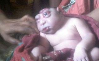 Bé trai bị mẹ ruồng bỏ chỉ vì ngoại hình đầu nhỏ, mắt lồi đáng sợ