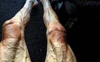 Đạp xe gần 3.000km, đôi chân của cua-rơ người Ba Lan nổi gân guốc kinh hoàng