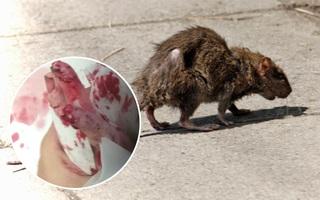Cô bé 14 tuổi bị đàn chuột hung dữ cắn hơn 200 vết kín cơ thể trong lúc ngủ say
