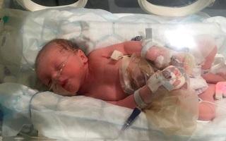 Em bé phải bó mình trong màng bọc nilon vì mắc dị tật ruột nằm ngoài bụng