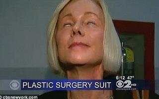 Không nhắm được mắt sau phẫu thuật thẩm mỹ