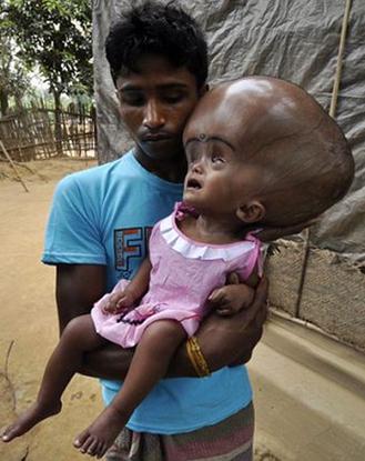 Bé gái đầu to như người ngoài hành tinh qua đời sau 5 năm chống chọi với bệnh tật
