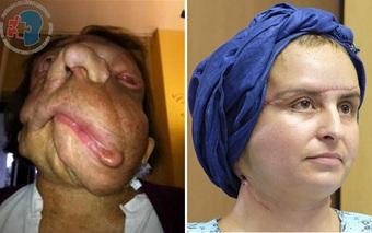 Người phụ nữ mang gương mặt quỷ, 3 năm sau, cô trở nên xinh đẹp đến bất ngờ
