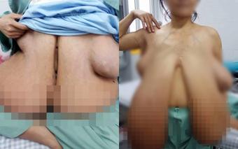 """Nỗi khổ của người phụ nữ mắc chứng bệnh """"ngực khủng"""" bị chồng bỏ rơi, một mình nuôi 2 con nhỏ"""