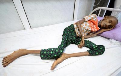 Thật không dám tin thân hình còi cọc tới mức thảm hại này là của một cô gái 18 tuổi